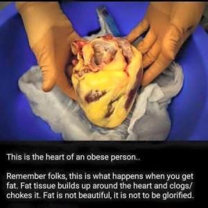 fat-heart