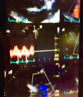 CLICK HERE to see my healthy beating heart, Echocardiogram